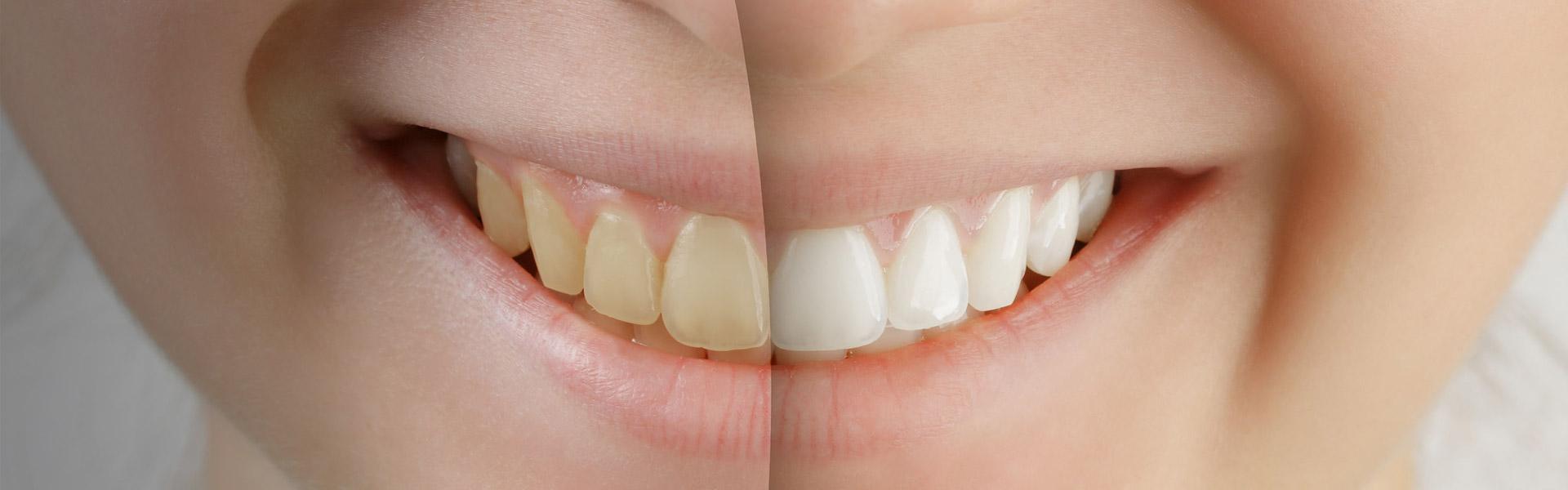 Wirkungsvolle und schonende Zahnaufhellung