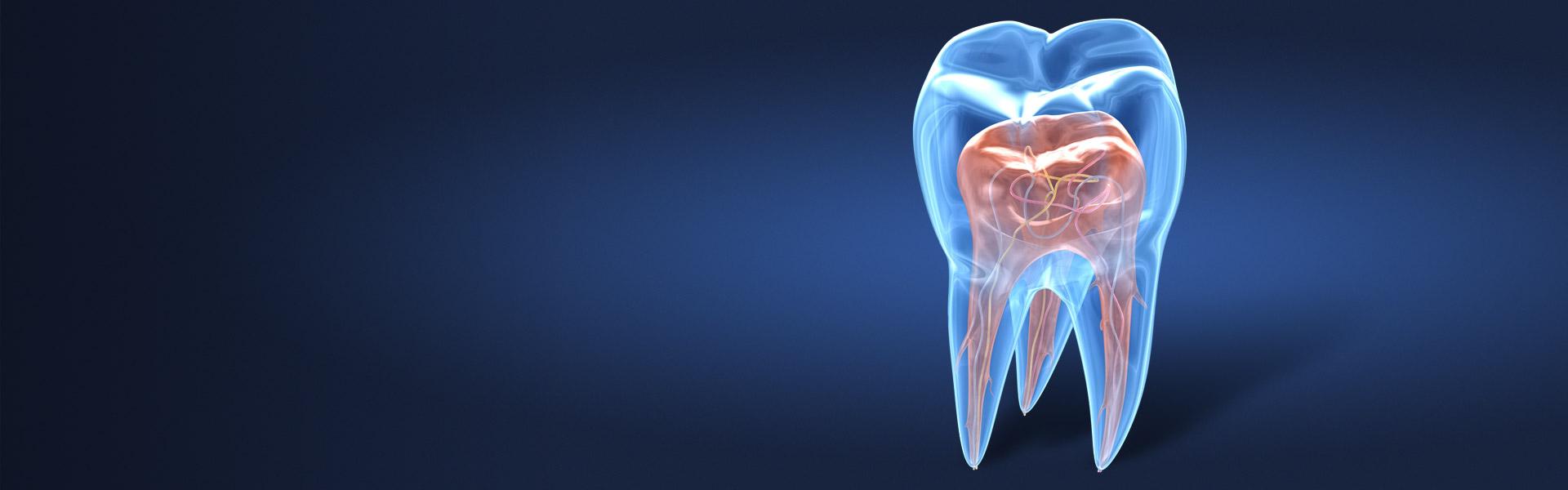 Erhaltung des eigenen Zahns