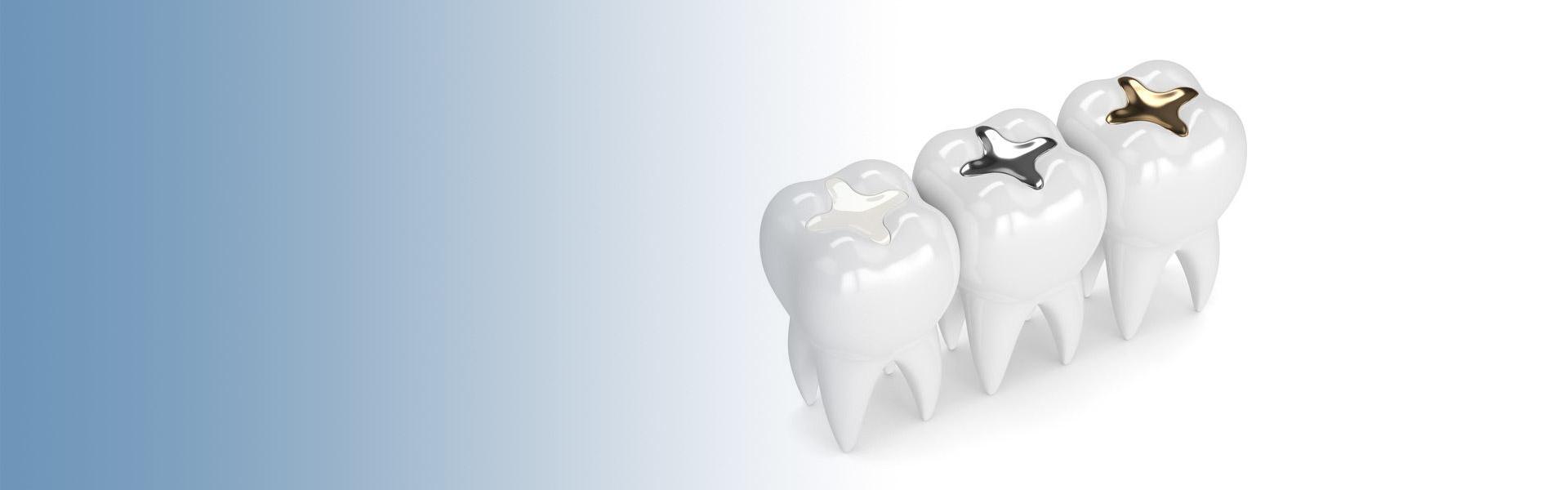 Passgenaue Rekonstruktion von Zahndefekten