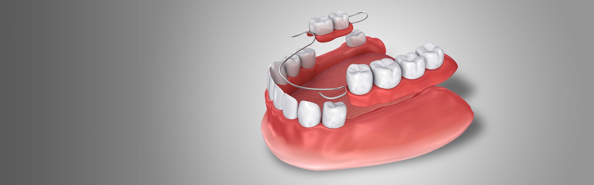 Zahnersatz mittels moderner Technik
